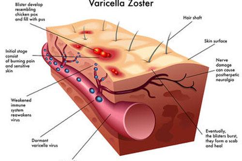 Bệnh zona thần kinh và những điều cần biết