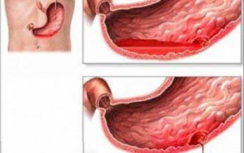 Những tác hại của bệnh viêm loét dạ dày