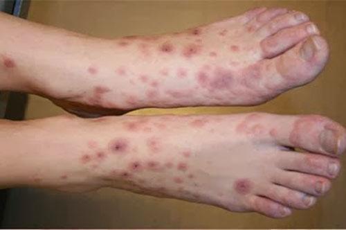 Tìm hiểu về bệnh viêm da cơ địa