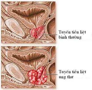 U xơ tuyến tiền liệt - Cách điều trị tuyến tiền liệt