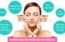 nguyen-nhan-gay-nam-da-mat