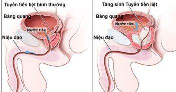 viem-tinh-hoan-anh-huong-nhu-the-nao-1