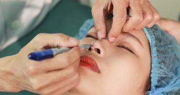 Quy trình nâng mũi phải đảm bảo đáp ứng yêu cầu khắt khe của Bộ Y tế.